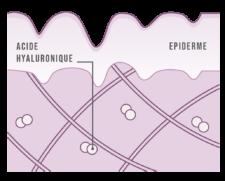 Une peau avant apport d'acide hyaluronique